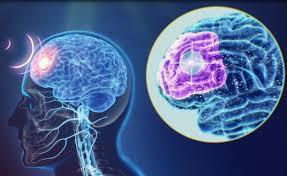 Equipamento estimulação cerebral