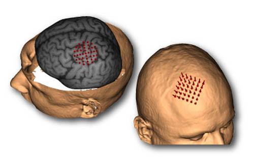 Equipamentos para neurocirurgia
