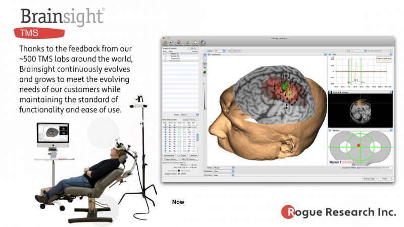 Equipamento neuronavegador