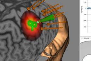 Neuro-Imagem – NIRS