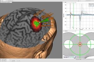 Brainsight™ 2
